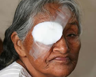 Patient with cataracts being seen at Aprecia hospital in Santa Cruz.