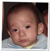 Jeick has ROP and is being treated at CBM supported hospital in Peru.