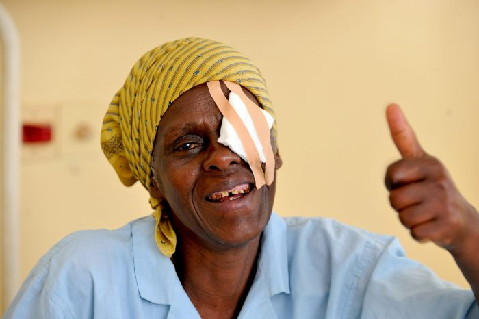 Joyce Simon Kaaya (57yrs) has bilateral cataracts. She attended the KCMC Hospital/MOSHI, where she received the 10,000,000th CBM-supported cataract operation.