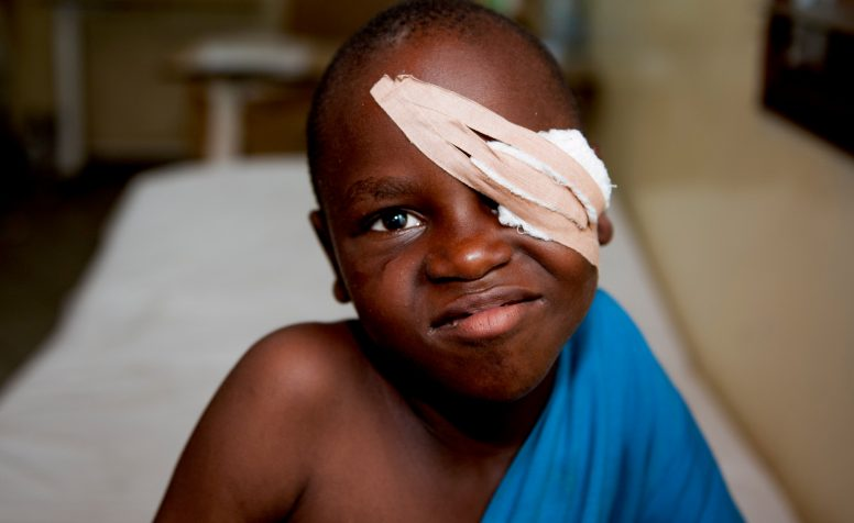 Edward wearing an eye bandage after his cataract surgery at CBM partner in Tanzania.