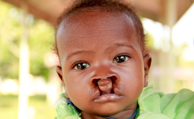 Joan at CoRSU in Uganda before surgery for Cleft lip and palate.