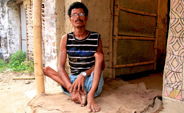 Rajendra who has polio slept outside his house for several days after the earthquake in Nepal afraid of more tremors.