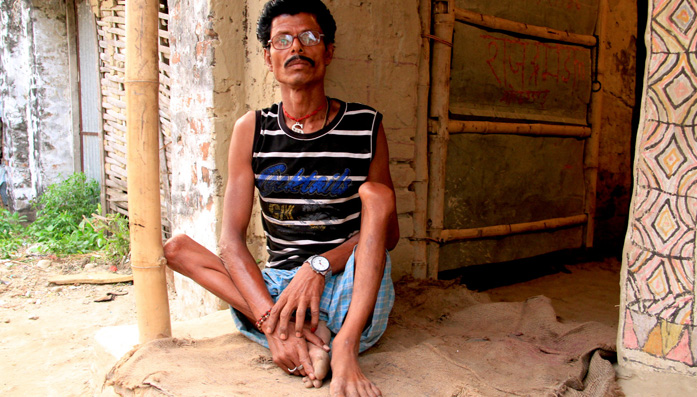 Rajendra, who has polio, slept outside his house for several days after the earthquake in Nepal afraid of more tremors.