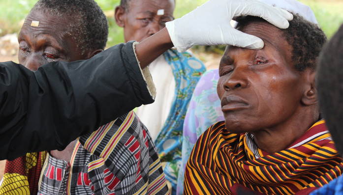 Joyce having her eyes checked after her Trachoma operation in Uganda.
