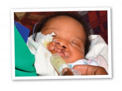 Baby Godfrey with cleft lip and palate.