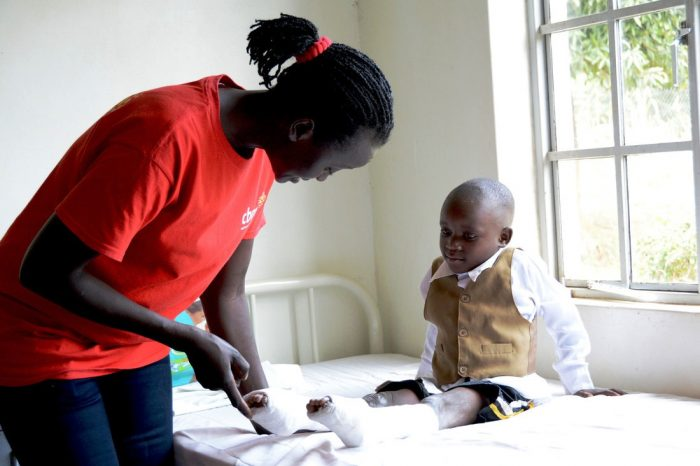 4 year old Sylas born with clubfoot undergoing treatment. Field worker Agnes Nabawanuka teaches some exercises.