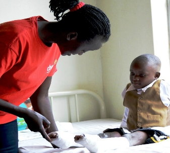 4 year old Sylas born with clubfoot undergoing treatment. Field worker Agnes Nabawanuka teaches