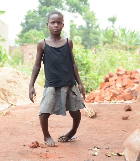 Regina from Uganda, West Africa suffers from Blount's disease (bow legs) making it difficult for her to move around.