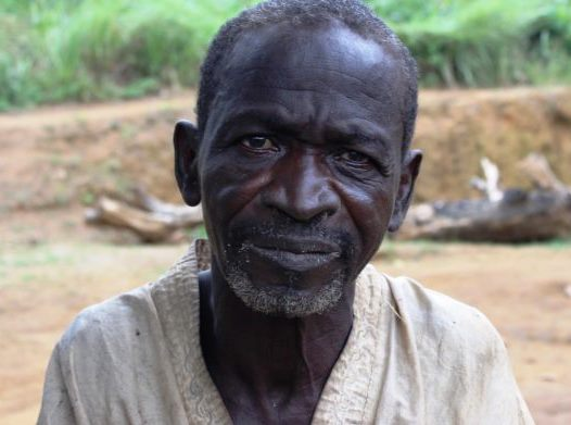 Gondo is 63 years old and lives in Ivory Coast. He suffers from cataracts.