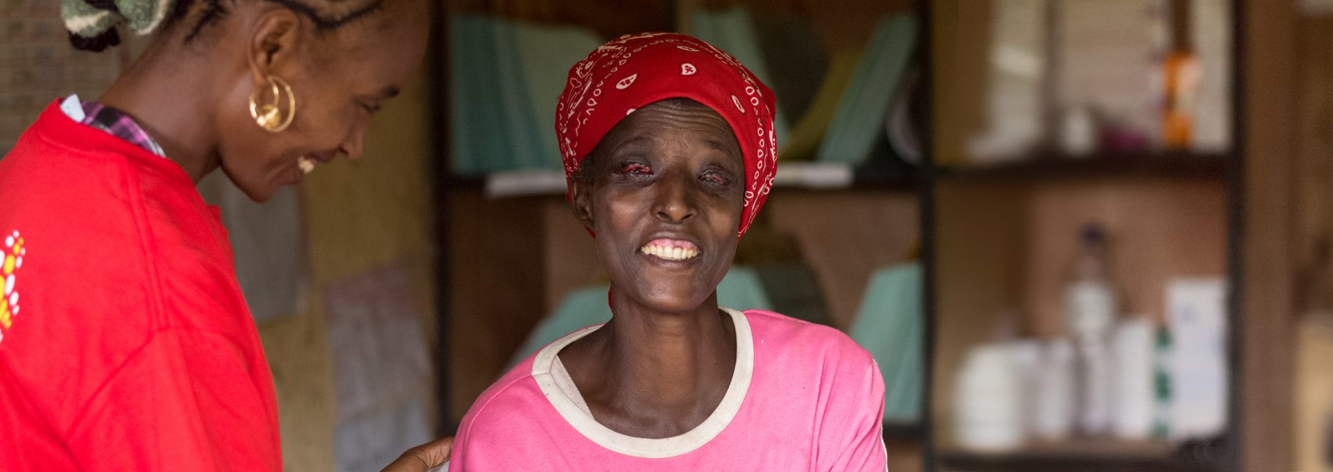 Bedecha's eyelashes have turned inwards due to repeated trachoma infections.