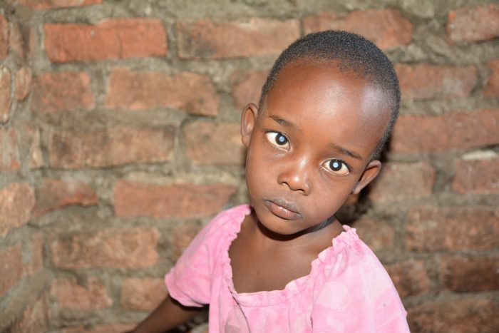 3-year-old Shakulu is blind in both eyes from cataracts.