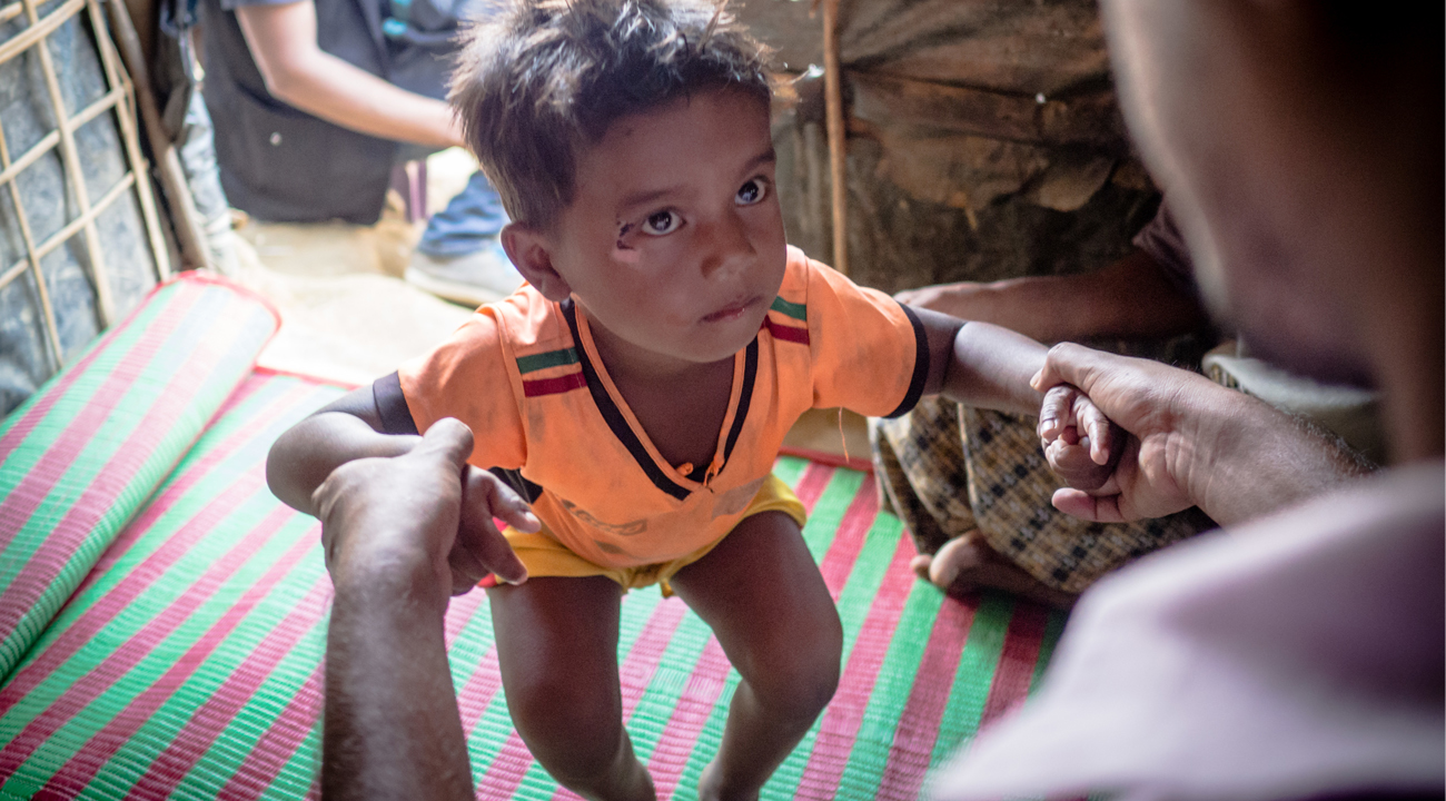 Haris, a three-year-old boy, receives physiotherapy from CBM's local partner in Bangladesh, following the refuge crisis in Rohingya