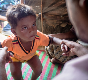 Haris, a three-year-old boy, receives physiotherapy from CBM's local partner in Bangladesh, following the refuge crisis in Rohingya.