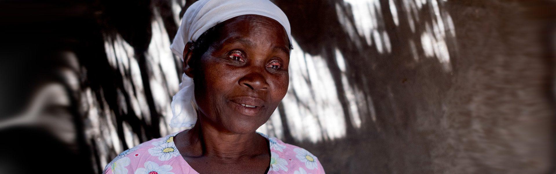 Aida's eyelashes have turned inwards, causing excruciating pain, because of trachoma.
