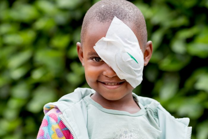 5-year-old Charlotte can now see after cataract surgery at a CBM-supported hospital.