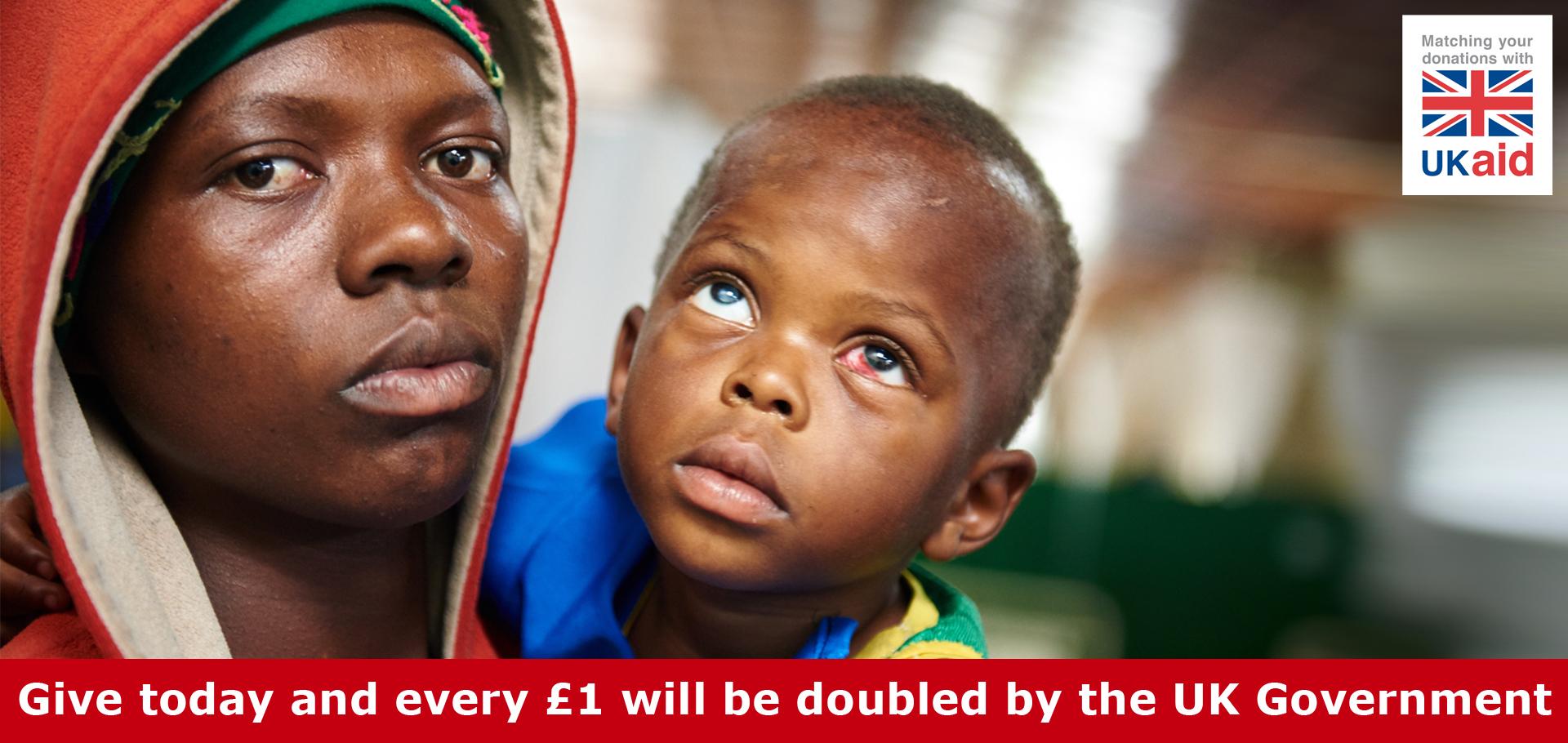 Theo from Rwanda has cataracts in both eyes.