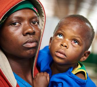 Theo from Rwanda has cataracts in both eyes