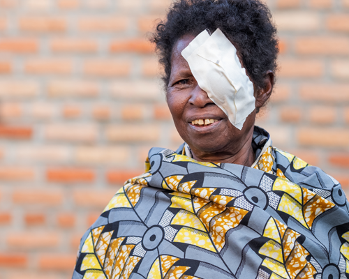 Salome smiling with a bandage over her eye