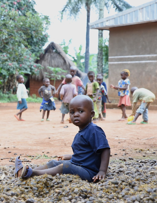 Nahel has congenital bilateral cataracts and nearly no vision and is quite often excluded from the play of other children.
