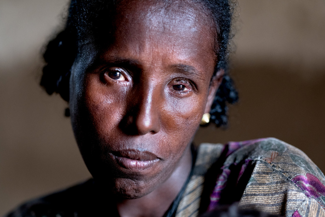 """Faya, Ethiopia - 20.05.17  - Dinknesh Wondifraw, days after her trichiasis surgery in her left eye in Faya, Amhara Region, Ethiopia, on May 20, 2017. """"I am feeling better already,"""" says Dinknesh. """" I am so thankful for what has been done for me."""""""