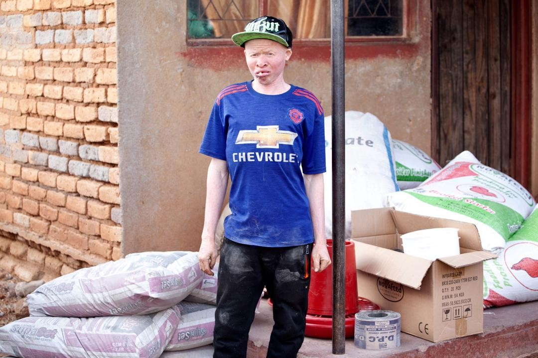 Youth with albinism with some of the materials to start up his business