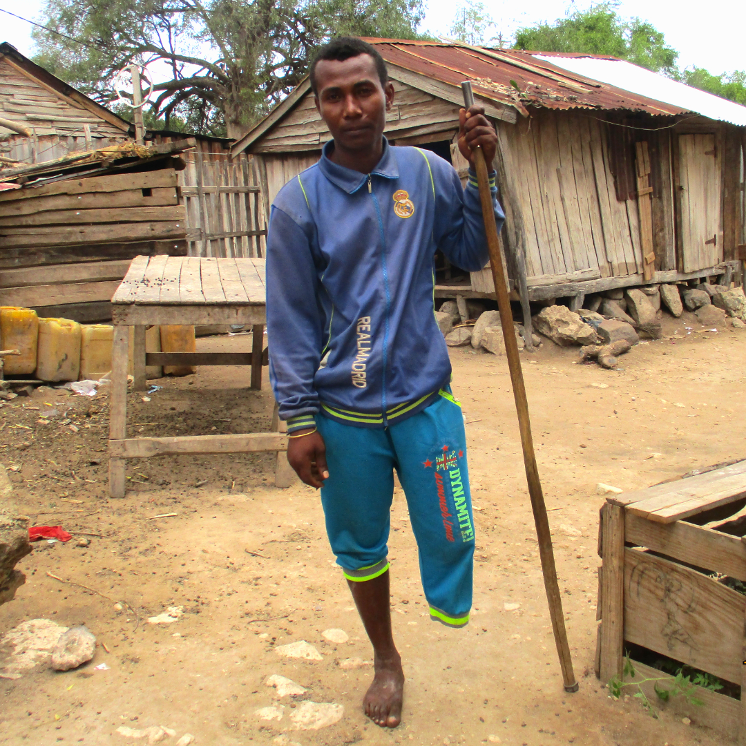 A man in blue clothes stands upright with the help of a walking stick in a village in southern Madagascar; his left leg is amputated below the knee.