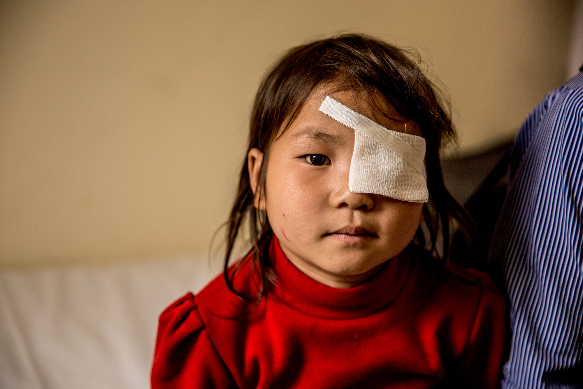 Close-up of Nhung looking to camera, with an eye patch over her left eye.